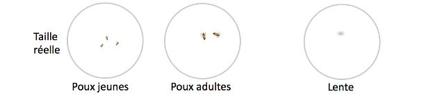 stop-aux-poux-loupe-lente-poux-scoleo